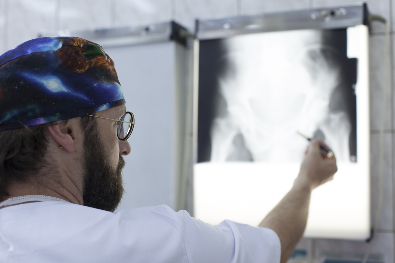 lekarz oglądający zdjęcie RTG